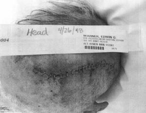 brain surgery - ed warner