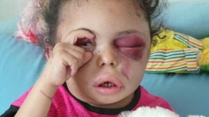 swollen eyes of Yemen Bomb victim