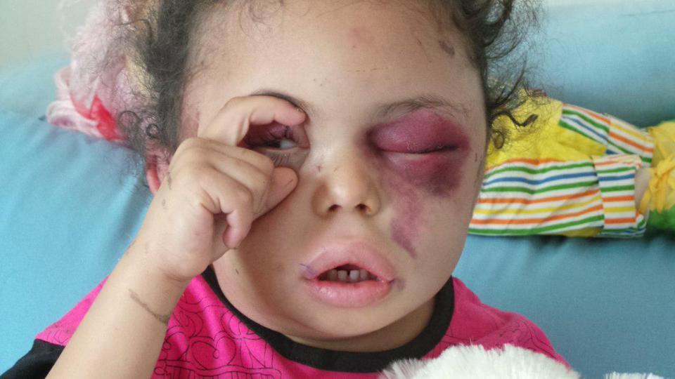 swollen eyes of Yemen Bomb victim